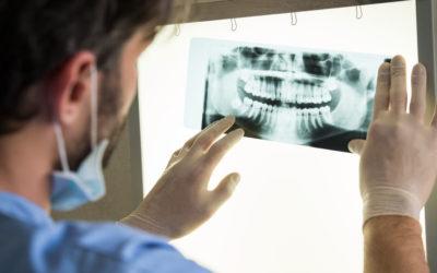 Perdere i denti: ponte o impianto? A colloquio col dott. Giannetti